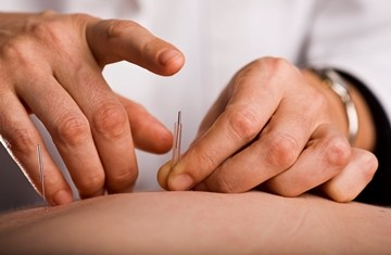 Dry Needling and Trigger Points