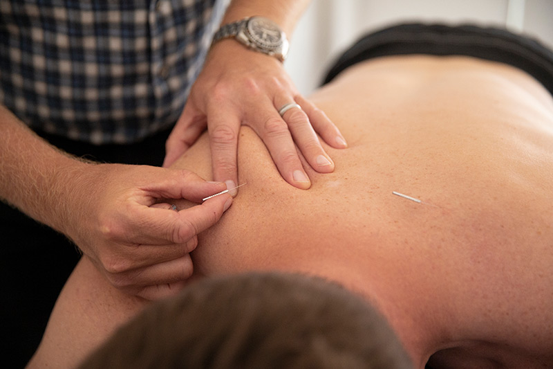 dry needling perth physiotherapy