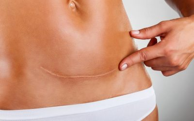 How to care for your caesarean scar